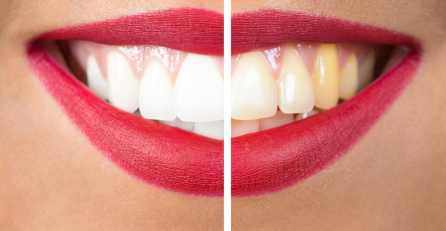 DOES VAPING STAIN YOUR TEETH -